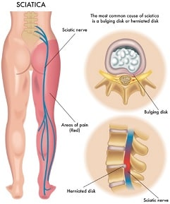 lower back pain when bending over or sitting