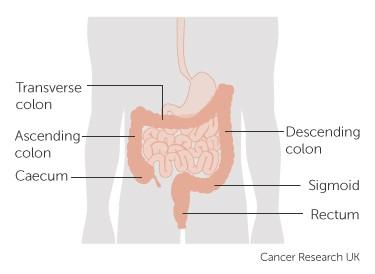 Bowel image